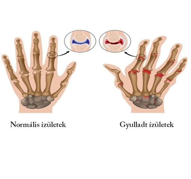 kenőcsök ízületek kezelésére saját kezükkel amikor az ízület kattan, mint hogy kezelje