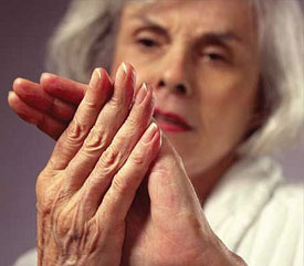 a kefe ízületeinek eróziós ízületi gyulladása