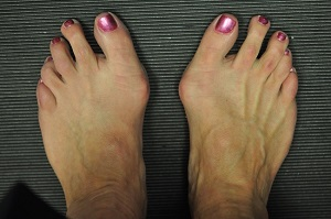 Lábfej fájdalom 23 oka, 11 tünete és 12 kezelési módja