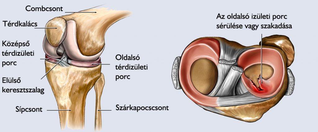 a térd megerősítése sérülés után litoterápiás ízületi kezelés