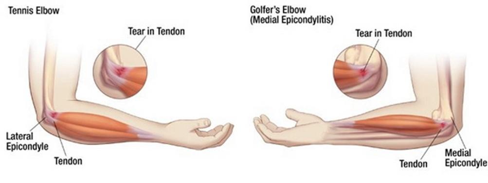 a térdízület artrózisának érzéstelenítése hogyan kell kezelni a vállízület szklerózisát