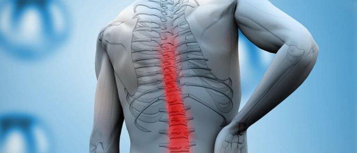 a capsicum segít az ízületi fájdalmak kezelésében