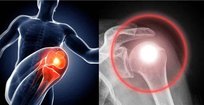 ultrahang artrózis kezelő készülék