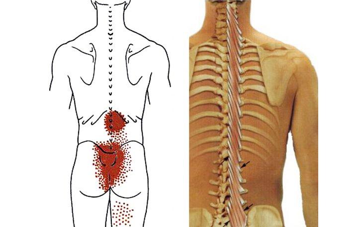 csípőízület típusú sérülések
