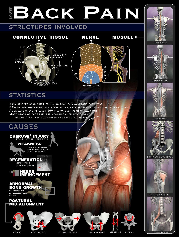 lumbosacral fájdalom a csípőízületben ujjak ízületeinek kezelésére szolgáló készítmények