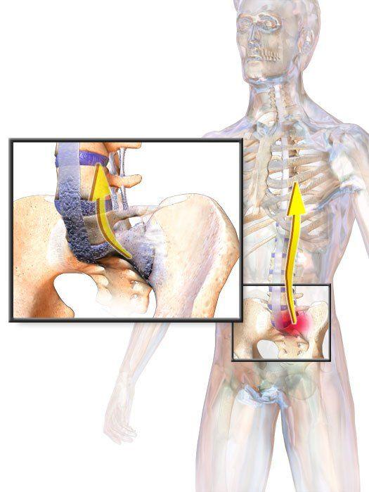 ankylosing spondylitis ízületi fájdalom fájdalomcsillapítók a csípőízületek súlyos fájdalmainak kezelésére