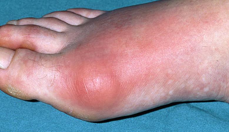 zsibbadás artritiszben