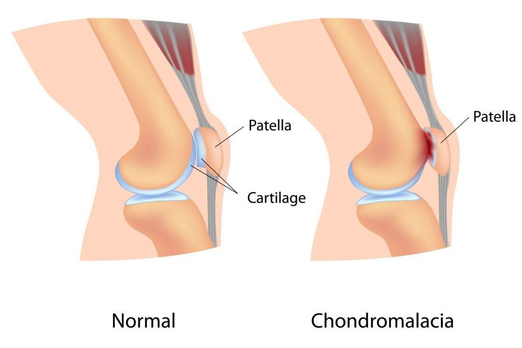 kenőcsök, amelyek enyhítik a térdízületek fájdalmát