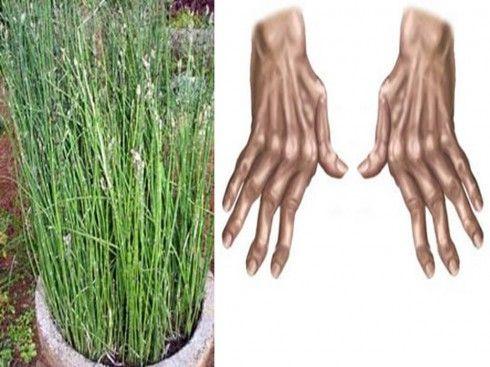 mit kell csinálni fájó lábak ízületek az ízületek növekedéseinek kezelése