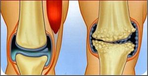 artrózis és kezelési módszerek hatékony tömörítések a térdízületek fájdalmaihoz