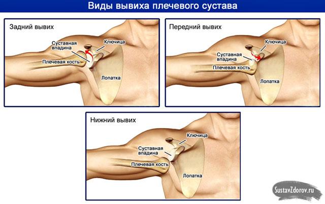 a vállízület artrózisa 1 fokos kezelés