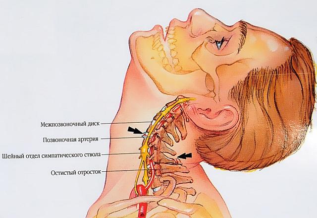 Befagyott váll szindróma