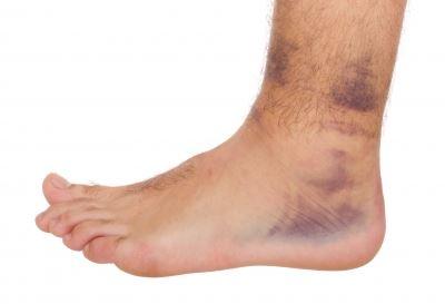 boka sérülés utáni gyógyulás