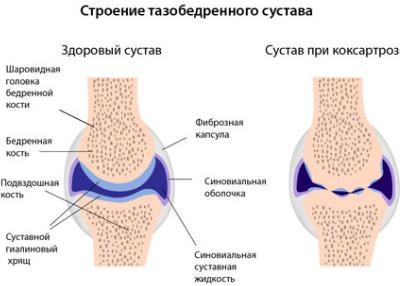 a lumbosacrális gerinckezelés artrózisa kondroitin és glükozamin folyadék