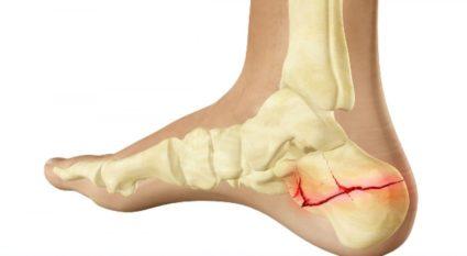 Milyen súlyos a csontvelő ödéma? - Ízületi Gyulladás -