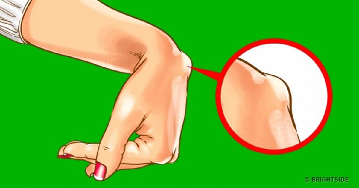 csukló ganglion kezelés nem szteroid gyulladáscsökkentő kenőcsök ízületi kezelésekhez
