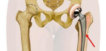 fájdalom és ropogás a csípőízület kezelésében általános ízületi fájdalomcsillapítók