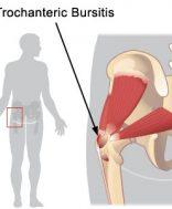 fájdalom és ropogás a csípőízület kezelésében hogyan lehet az ízületi gyulladást kezelni