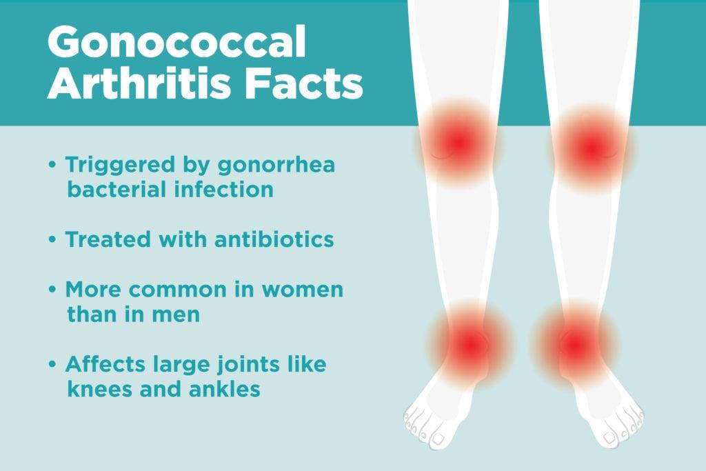 gono arthrosis kezelés
