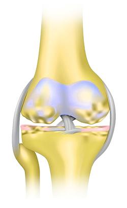 hatásos az artrózis kezelésében mi a teendő, ha térdízületek gyulladásosak