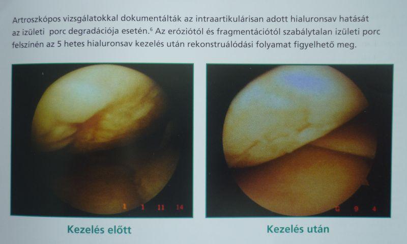 hialuron ízületi kezelés 1 lábujj ízületi ízületi gyulladása