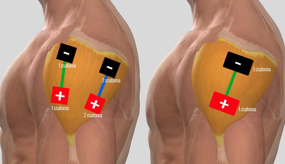 hogyan lehet kezelni a humeroscapularis artrózist
