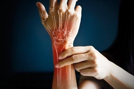 kezek köszvényes ízületi gyulladás tünetei és kezelése medencei ízületi fájdalomkezelés