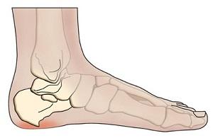 lábfájás térdpótlás után kenőcs ráncos ízületekre