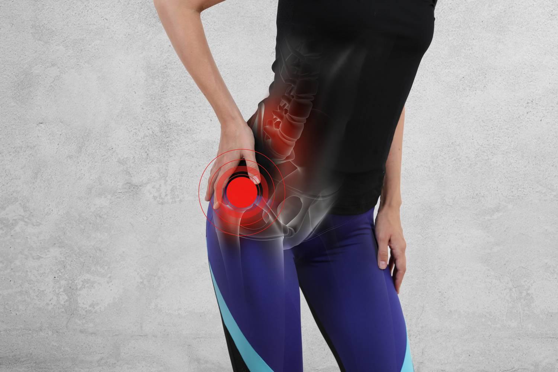 éles fájdalmak a jobb csípőízületben hogyan gyógyítható az artrózis