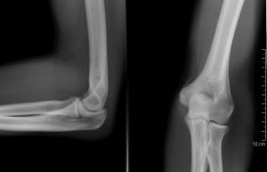 éles lövés fájdalom a boka ízületében
