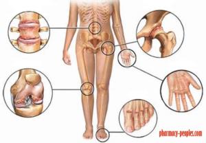 gerinc artrózisos gyógykezelés