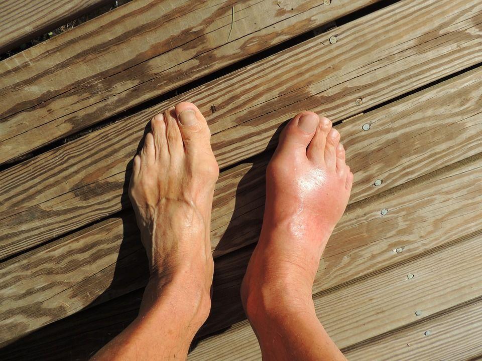 ízületi fájdalom a lábon