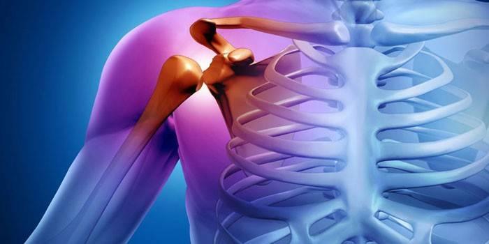 milyen kenőcsöt kell használni a könyökízület artrózisához ízületi gyulladás kézkezelő kezelés